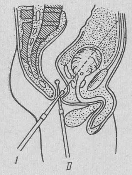 клизмы для очищения кишечника детям с натрия