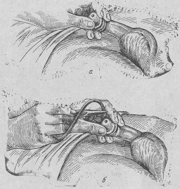 А - момент раскрытия наружного отверстия мочеиспускательного канала; б -