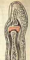 гнойный артрит пястно фалангового сустава