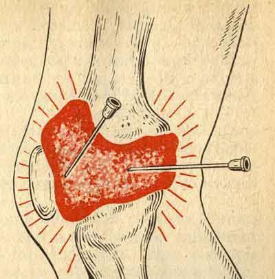 Бурсит локтевого сустава: лечение и симптомы.