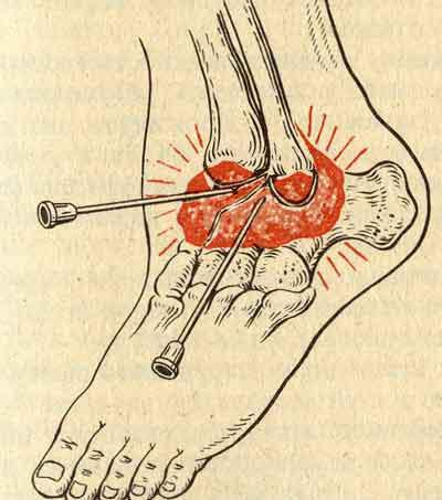 прокол ноги и сустава