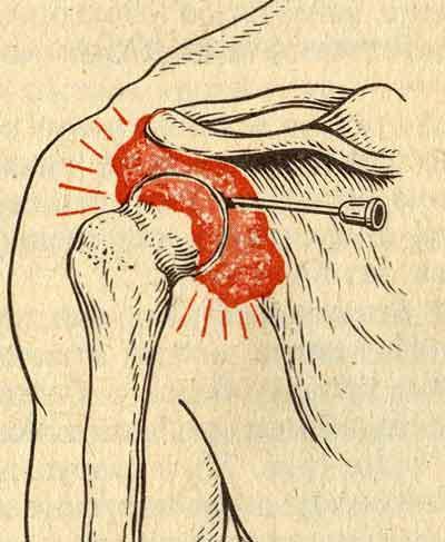 как делать пункцию локтевого сустава