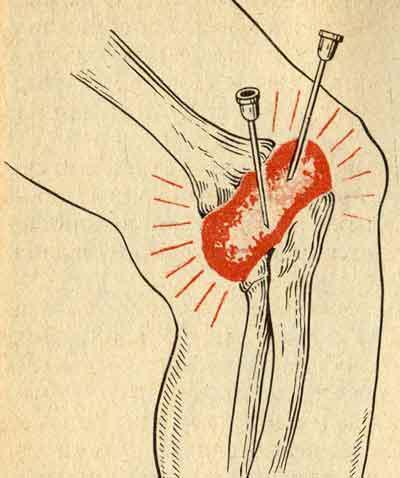 введение суставной жидкости тазобедренного сустава