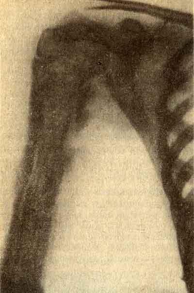 остеомиелит на гаре