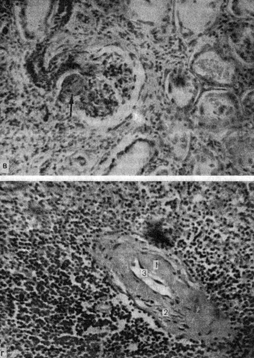 Диабетическая микроангиопатии внутренних органов (в, г)