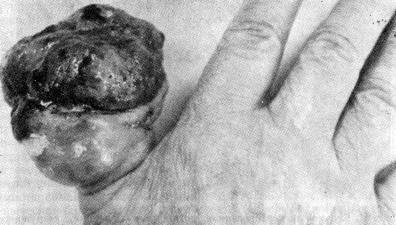 Подногтевая меланома — фунгозная форма