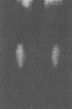 Термограмма нижних конечностей здоровой сестры-близнеца (ДБ) больной ИЗСД, 28 лет