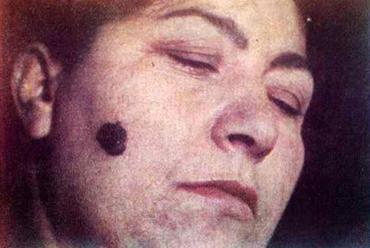 Сильно пигментированная меланома, возникшая на врожденном невусе