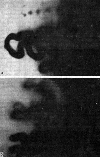 Капилляроскопическая картина у матерей больных ИЗСД (диабетических нарушений обмена не выявлено)