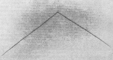 Гепатомегалия с данными на неравномерное распределение радиоактивного золота — метастазы злокачественной меланомы в печени