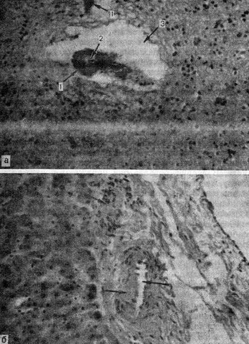 Диабетическая микроангиопатии внутренних органов (а, б)
