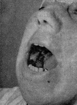 Злокачественная меланома десны нижней челюсти