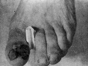 Сильно пигментированная подногтевая меланома, разрушившая частично ногтевую пластинку большого пальца ноги
