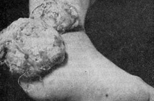 Гигантская экзофитная, фунгозная ахроматическая меланома