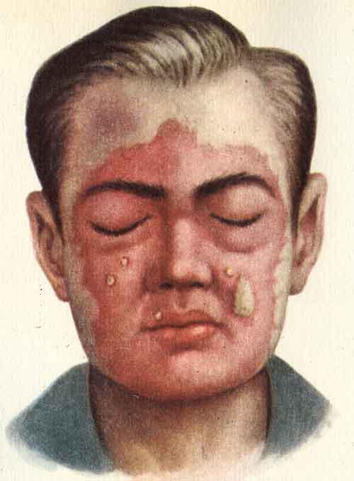 Рожа (симптоматика) - Гнойные воспаления кожи и подкожной ...