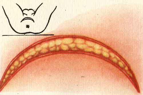 Операция при абсцессе предстательной железы