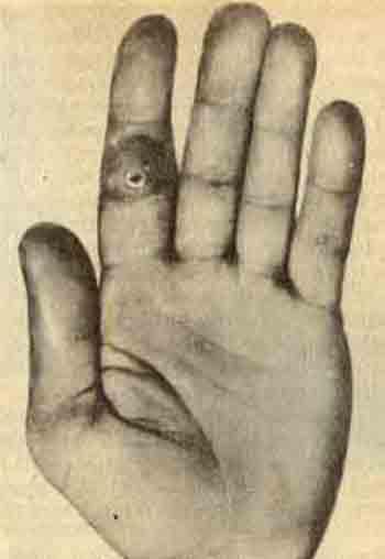Подкожный панариций II пальца