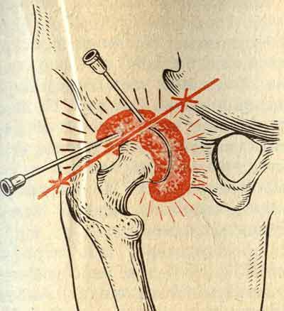 Эксартикуляция бедренного сустава хрящи на суставах - лечить