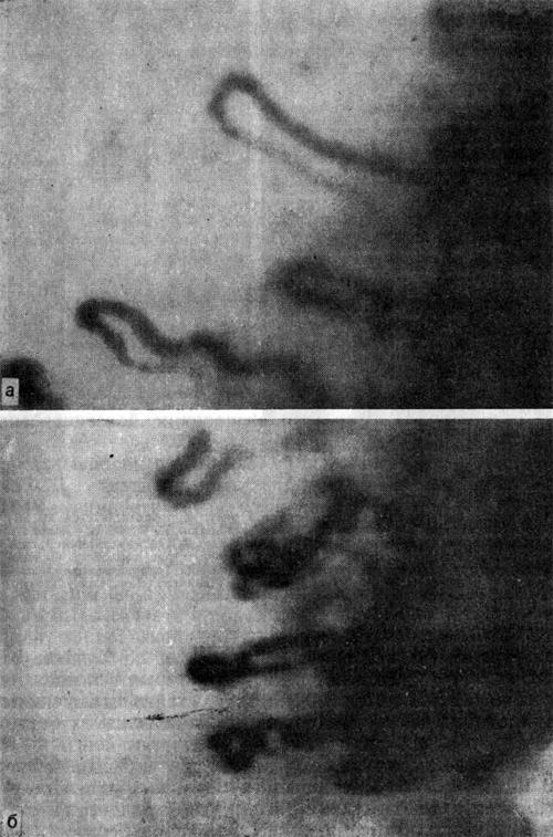 Капилляроскопическая картина