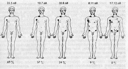 Титры сывороточных антител против аутологической меланомной опухоли понижаются с прогрессированием болезни и с увеличением общего объема опухолевой массы