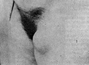 Метастатический пакет пахово-бедренных лимфатических узлов с неизвестным первичным очагом