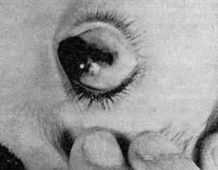 Злокачественная меланома соединительной обложки глазного яблока на основе преканцерозного меланоза вблизи глазного края