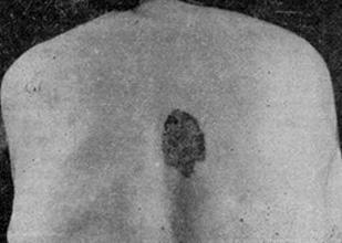 Пигментированная форма болезни Боуена