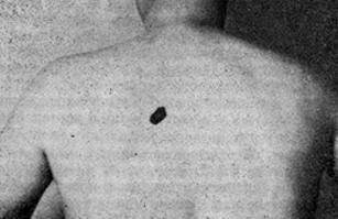 Поверхностная внутридермальная меланома