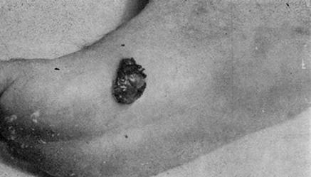 Веррукоподобная злокачественная меланома, расположенная на своде стопы