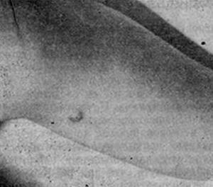 Гистиоцитома нижней конечности