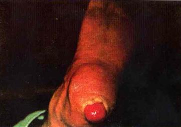 Ахроматическая меланома пятки