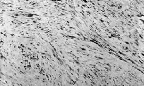 Продолговатый тип клеток ахроматической меланомы