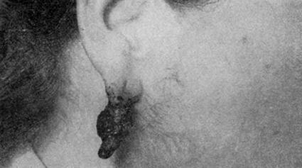 Фунгозная, сильно пигментированная, кровоточащая злокачественная меланома ушной раковины