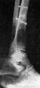 Остеолитические метастатические очаги в костях правой стопы и голени с патологическим переломом тибии (рентгеногамма Б. Битолского)
