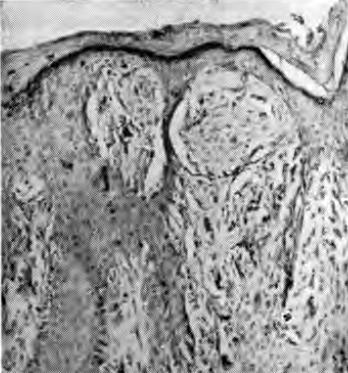 Ювенильная меланома