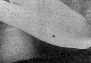 Склерозирующля гемангиома нижней конечности