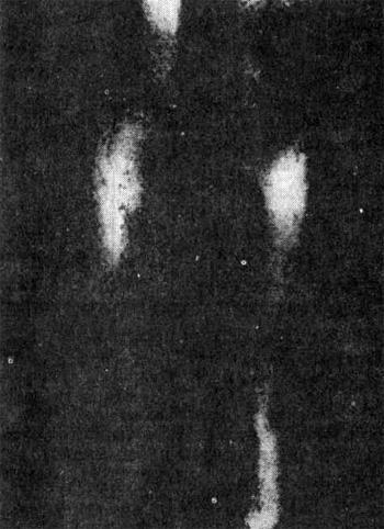Термограмма нижних конечностей сестры (76 лет) больной поздним ИНЗСД