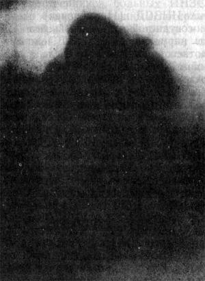 Капилляроскопическая картина дочери, 50 лет (диабетических нарушений обмена не выявлено), больной Поздним ИНЗСД