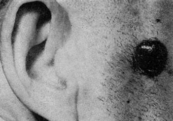 Сильно пигментированная, черная узелковая меланома
