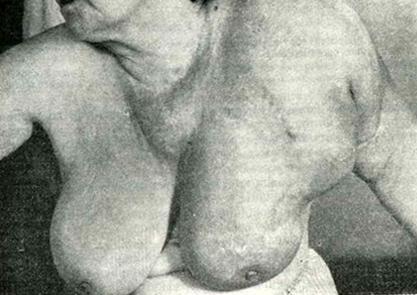 Диффузно метастазировавшая злокачественная меланома