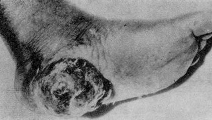 Фунгозно-инфильтративная злокачественная меланома кожи пятки негра