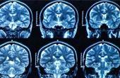 Когда нужна томография головы
