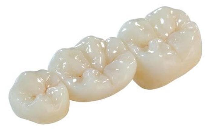 Восстановление функциональности зубного ряда посредством протезирования
