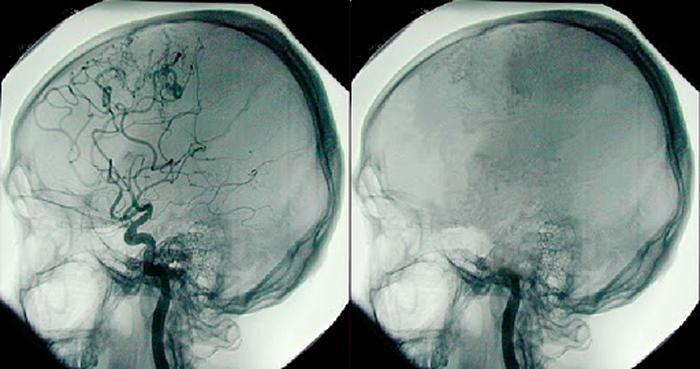 В чем разница между комой и смертью мозга?