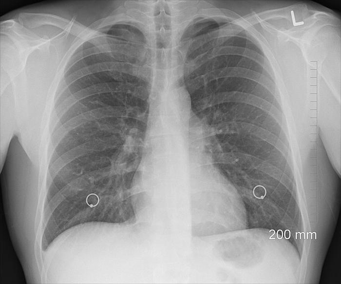 Осложнения пневмонии и их профилактика