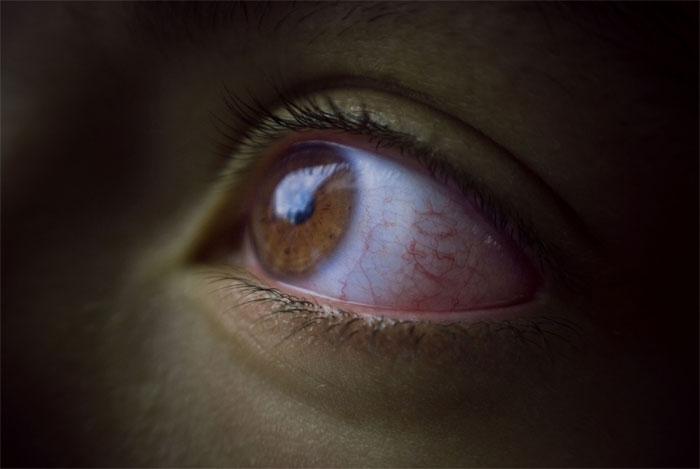 Обследования при глаукоме