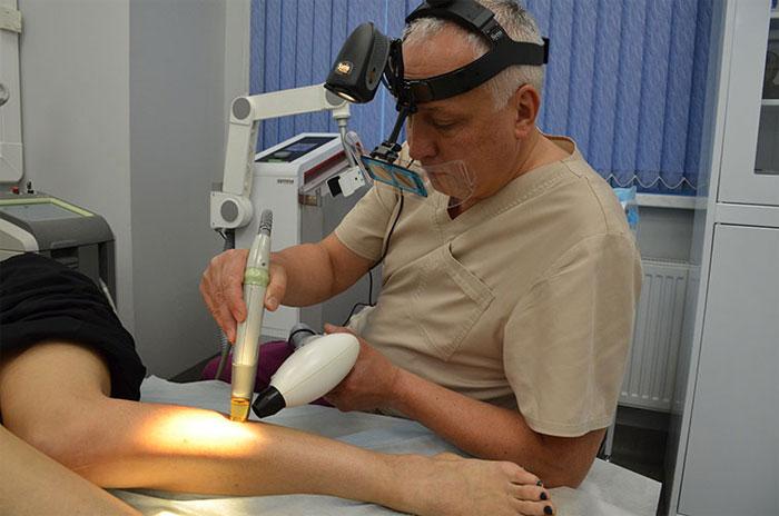 Как лечат варикоз лазером?